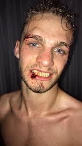 Peleador con una lesión por corte en el labio